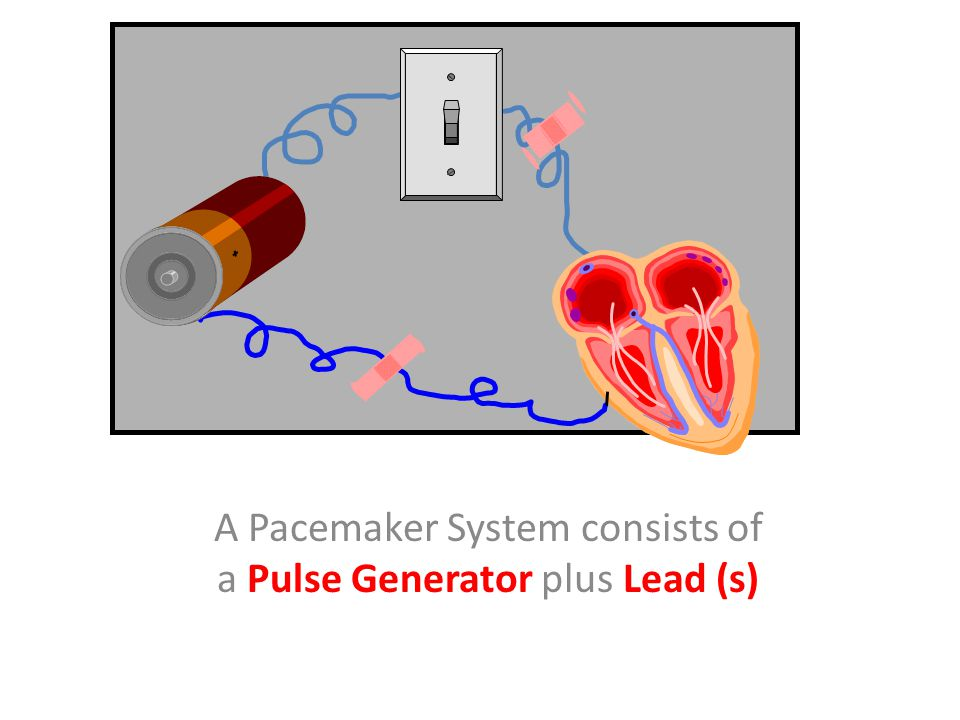 S Pulse generator- power source or battery Leads Cathode (negative electrode) Anode (positive electrode) Body tissue IPG Lead Anode Cathode Implantable Pacemaker Systems Contain the Following Components: