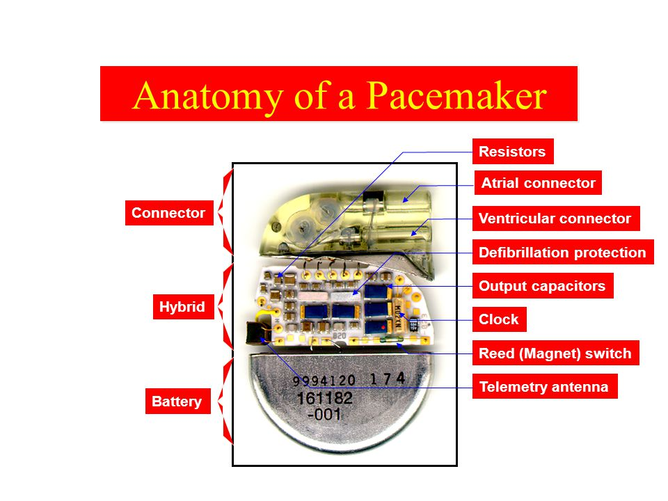 Rate Programmability The pacemaker function most commonly programmed is rate