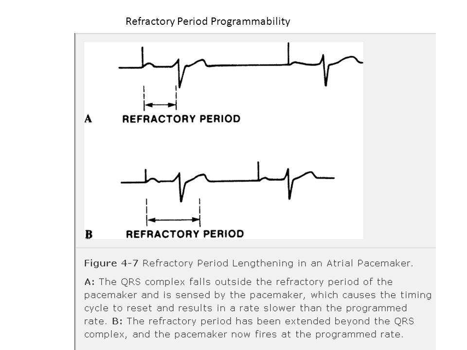 Refractory Period Programmability
