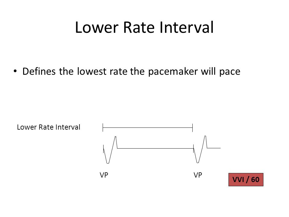 Lower Rate Interval VP VVI / 60 Defines the lowest rate the pacemaker will pace