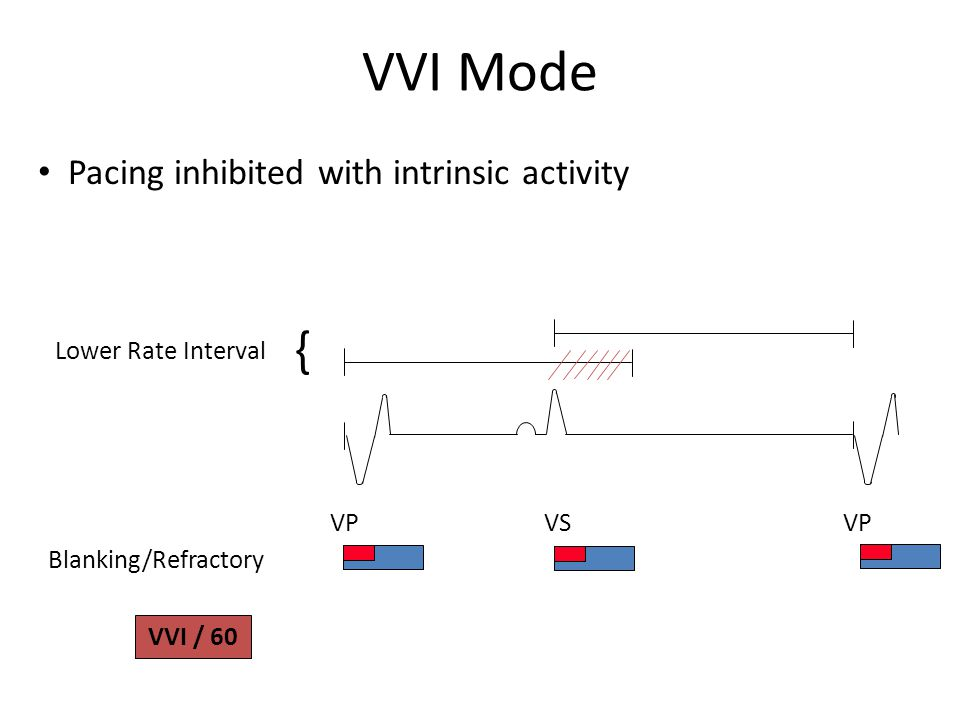 VVI Mode Lower Rate Interval VP VS Blanking/Refractory VP { VVI / 60 Pacing inhibited with intrinsic activity
