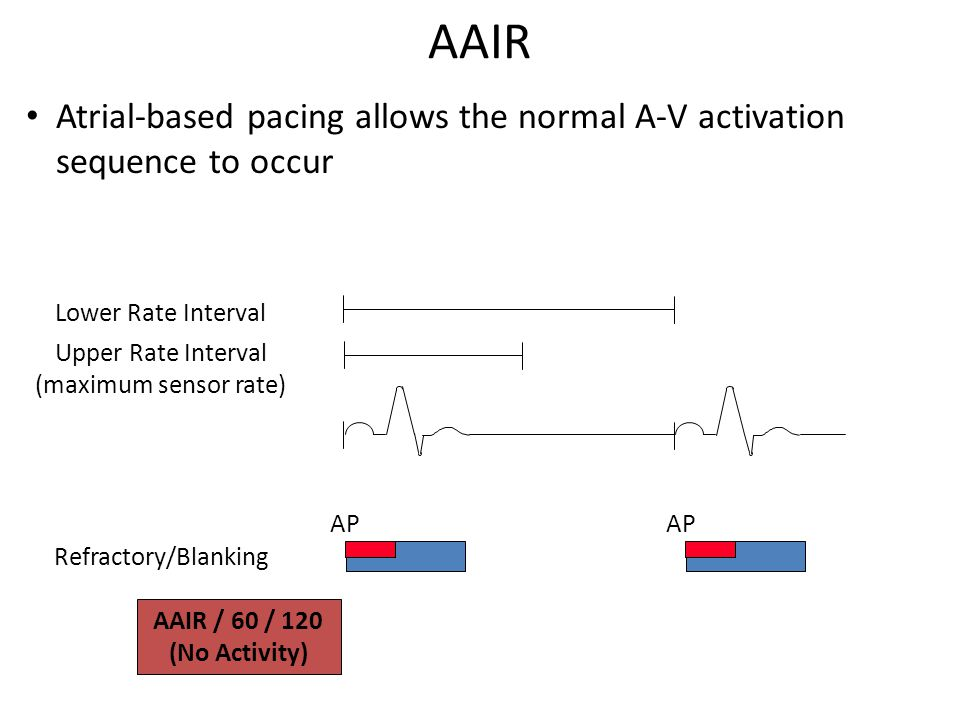 AAIR Lower Rate Interval AP Refractory/Blanking Upper Rate Interval (maximum sensor rate) AAIR / 60 / 120 (No Activity) Atrial-based pacing allows the