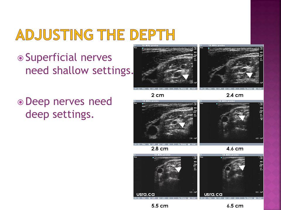  Superficial nerves need shallow settings.  Deep nerves need deep settings.