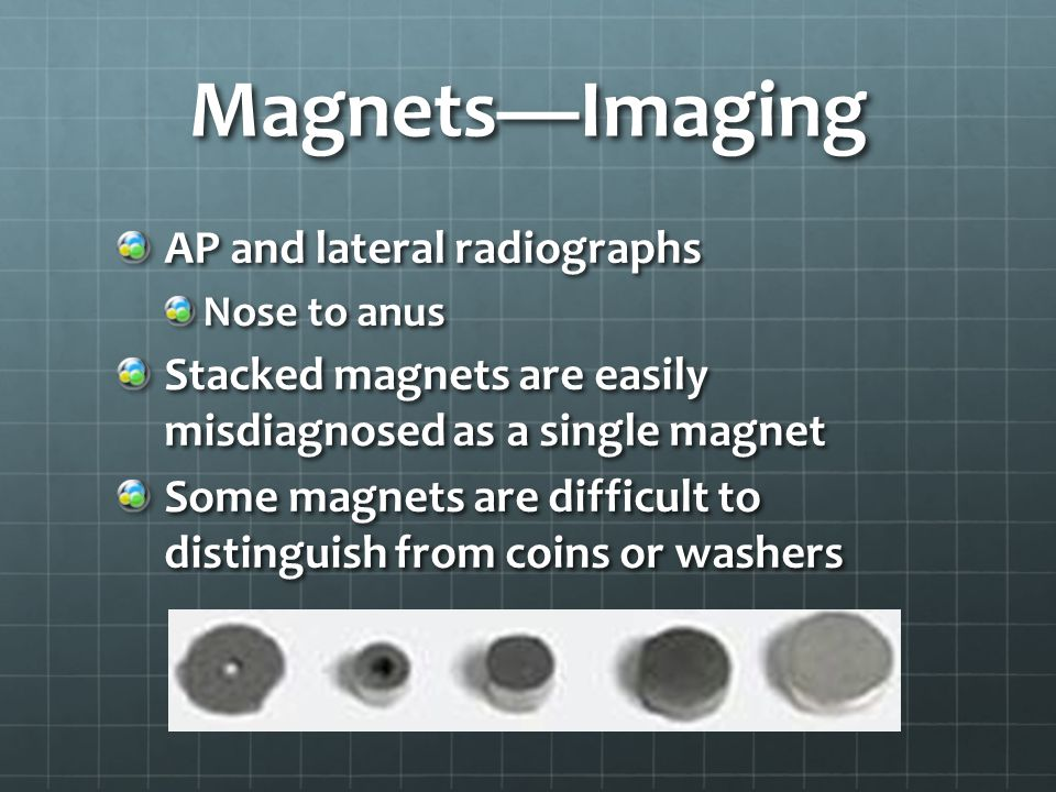 Magnets—Imaging AP and lateral radiographs Nose to anus Stacked magnets are easily misdiagnosed as a single magnet Some magnets are difficult to distinguish from coins or washers