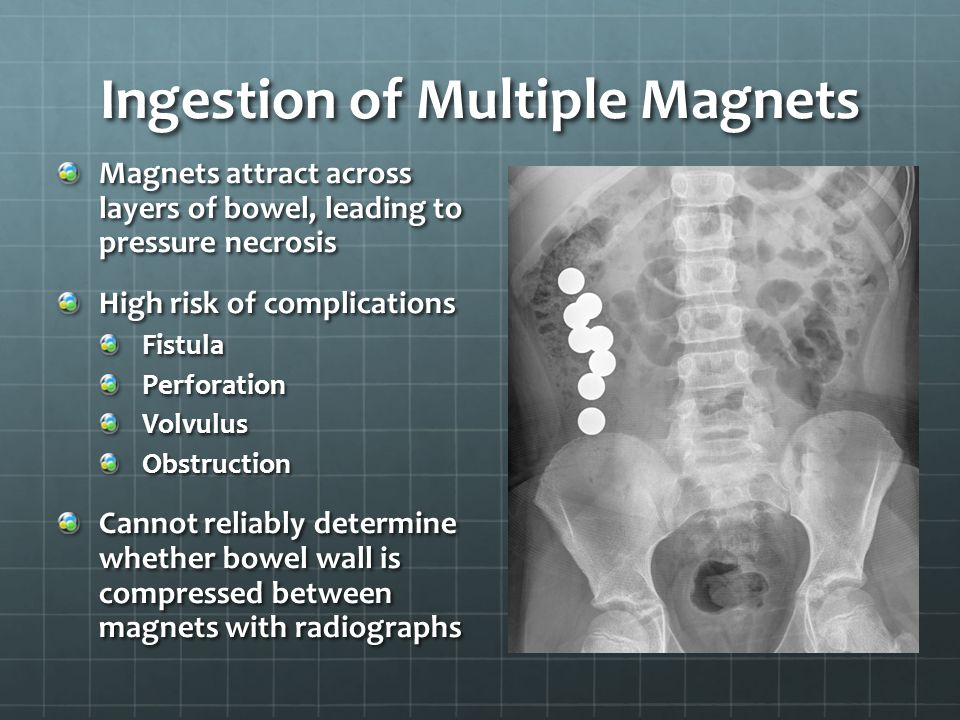 Ingestion of Multiple Magnets Magnets attract across layers of bowel, leading to pressure necrosis High risk of complications FistulaPerforationVolvul