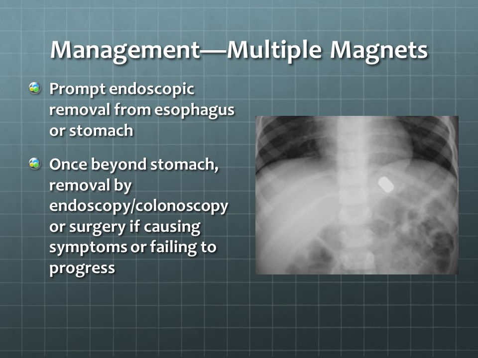 Management—Multiple Magnets Prompt endoscopic removal from esophagus or stomach Once beyond stomach, removal by endoscopy/colonoscopy or surgery if ca