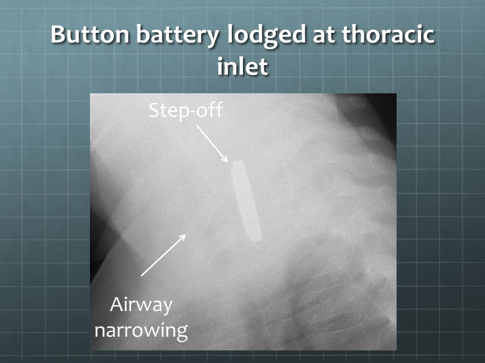 Button battery lodged at thoracic inlet Step-off Airway narrowing