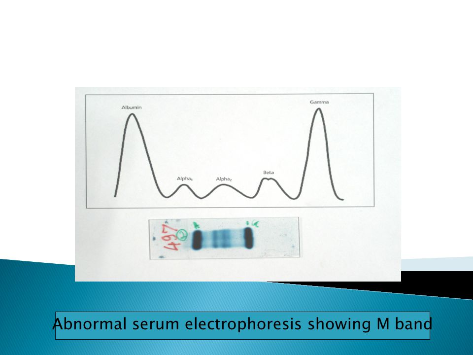Abnormal serum electrophoresis showing M band