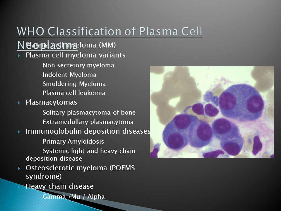  Plasma cell myeloma (MM)  Plasma cell myeloma variants Non secretory myeloma Indolent Myeloma Smoldering Myeloma Plasma cell leukemia  Plasmacytomas Solitary plasmacytoma of bone Extramedullary plasmacytoma  Immunoglobulin deposition diseases Primary Amyloidosis Systemic light and heavy chain deposition disease  Osteosclerotic myeloma (POEMS syndrome)  Heavy chain disease Gamma /Mu / Alpha