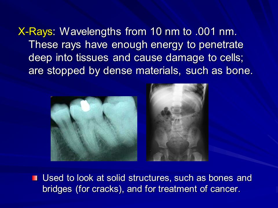 X-Rays: Wavelengths from 10 nm to.001 nm. These rays have enough energy to penetrate deep into tissues and cause damage to cells; are stopped by dense