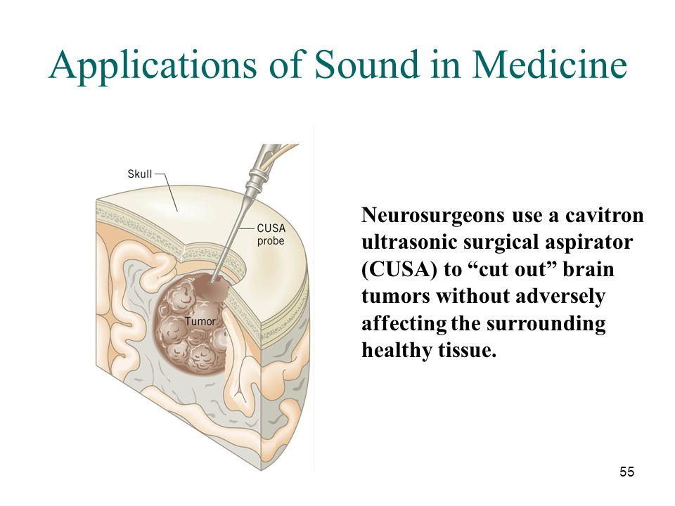 """55 Applications of Sound in Medicine Neurosurgeons use a cavitron ultrasonic surgical aspirator (CUSA) to """"cut out"""" brain tumors without adversely aff"""