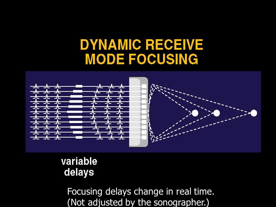 Dynamic Receive Focusing Focusing delays change in real time. (Not adjusted by the sonographer.)