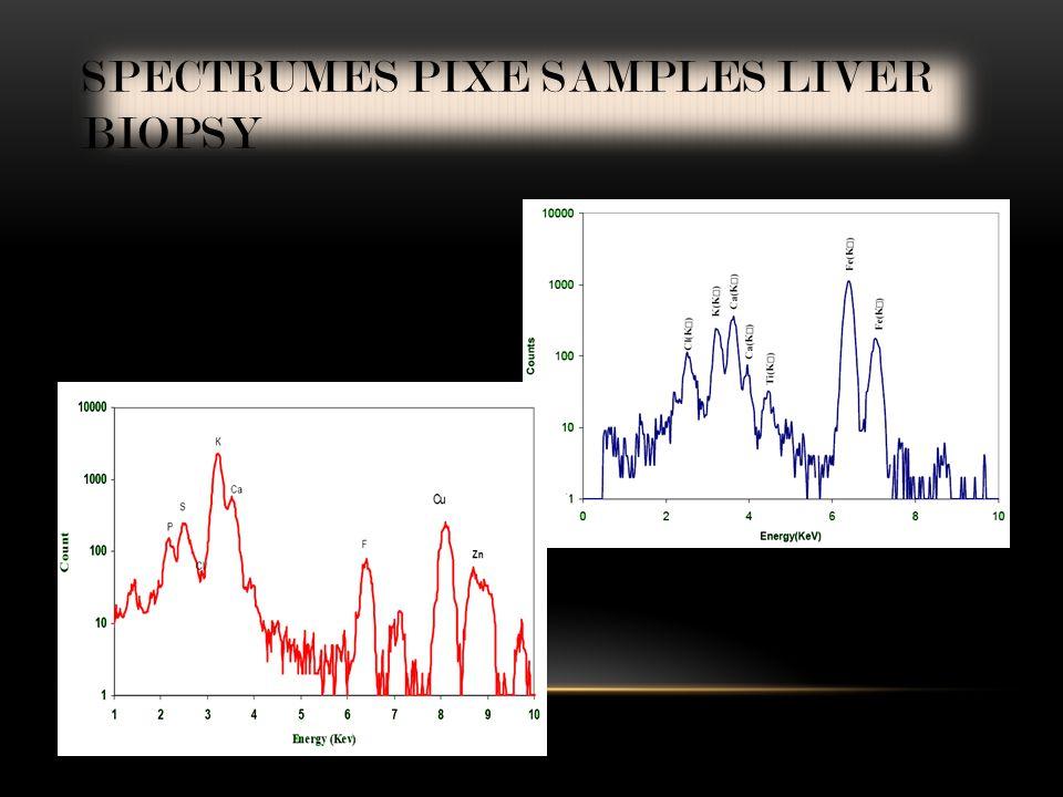 SPECTRUMES PIXE SAMPLES LIVER BIOPSY