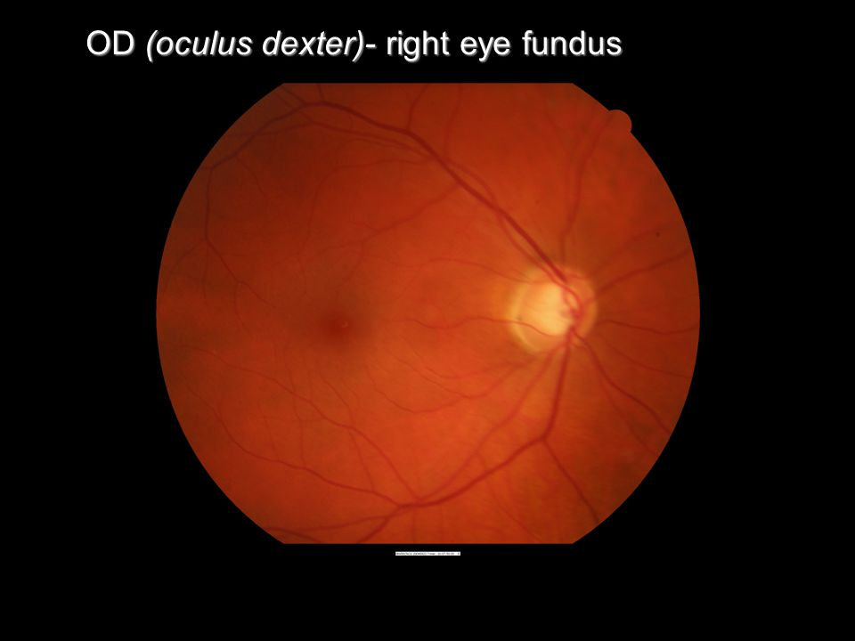 OD (oculus dexter)- right eye fundus