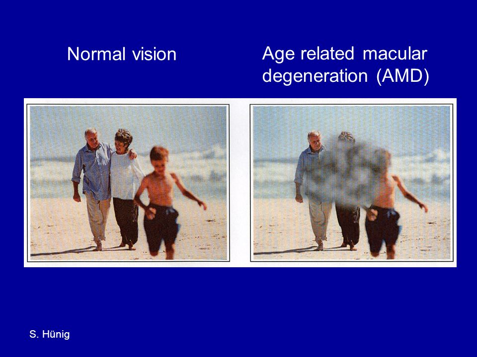 S. Hünig Normal vision Age related macular degeneration (AMD)