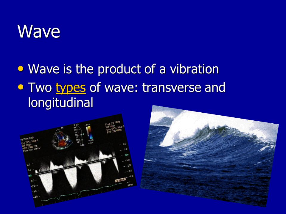 Wave Wave is the product of a vibration Wave is the product of a vibration Two types of wave: transverse and longitudinal Two types of wave: transvers