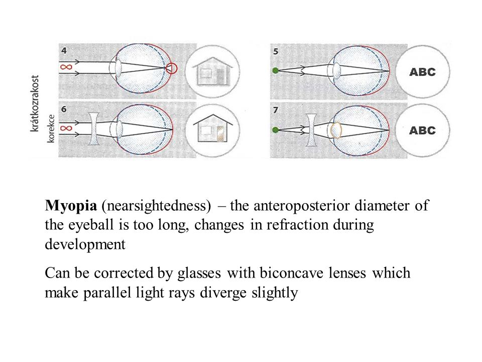 Myopia (nearsightedness) – the anteroposterior diameter of the eyeball is too long, changes in refraction during development Can be corrected by glass
