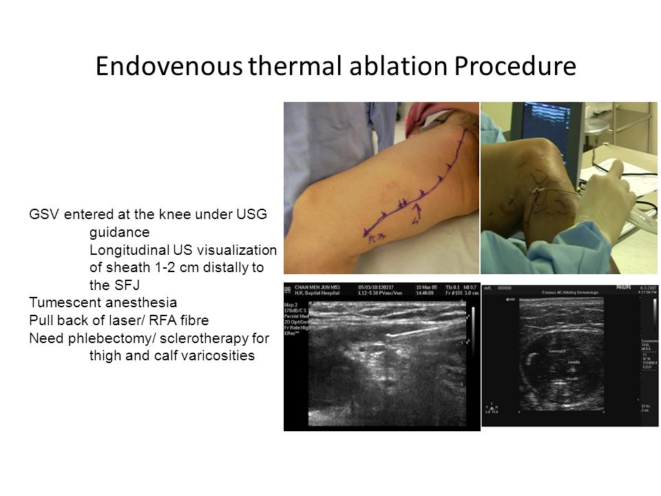 Endovenous thermal ablation Procedure Bola Pratt P&S MS 4 GSV entered at the knee under USG guidance Longitudinal US visualization of sheath 1-2 cm di