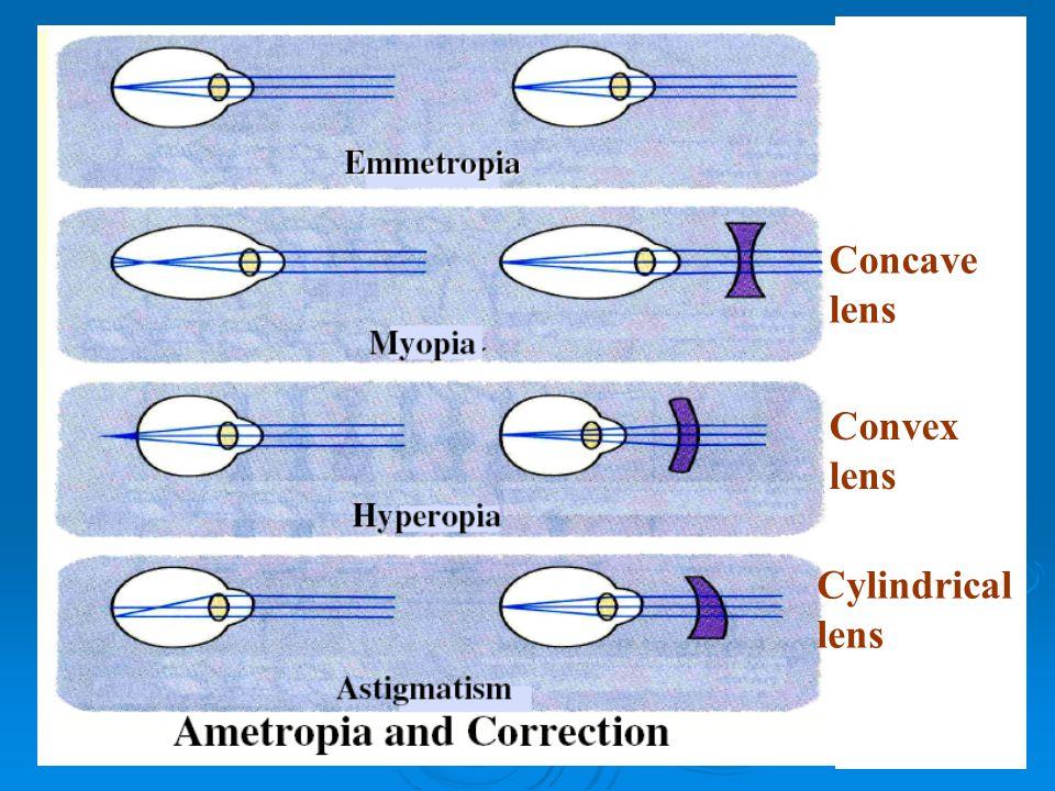 Concave lens Convex lens Cylindrical lens
