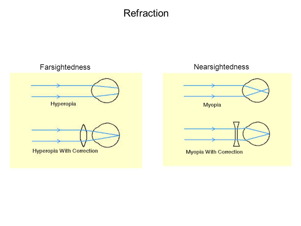 Refraction Nearsightedness Farsightedness