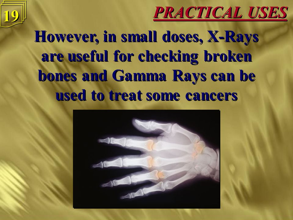 18 PRACTICAL USES Ultra violet waves, X-Rays and Gamma Rays can all cause types of cancer Ultra violet waves, X-Rays and Gamma Rays can all cause type