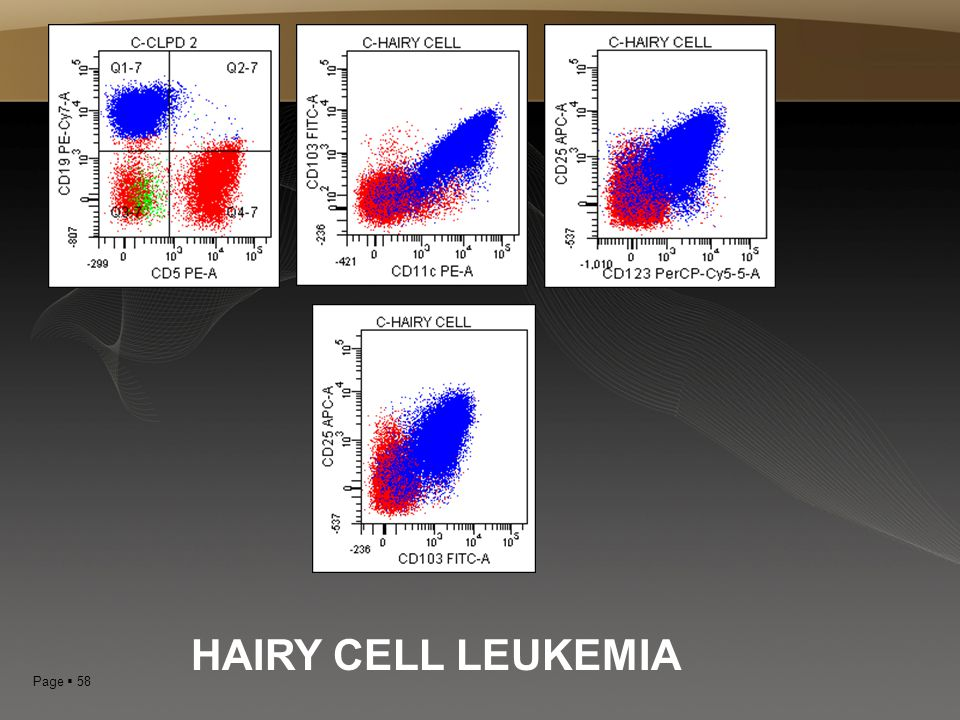 Page  58 HAIRY CELL LEUKEMIA