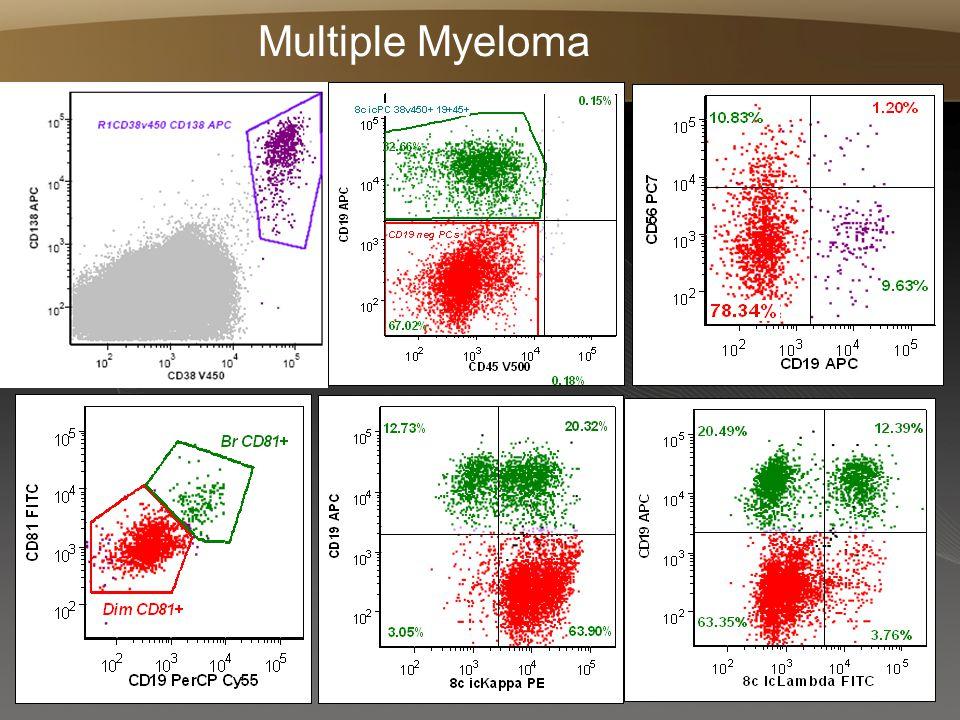 Page  61 Multiple Myeloma
