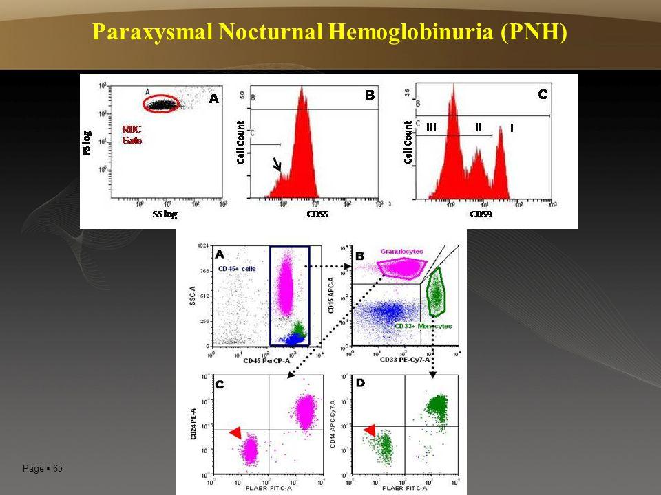 Page  65 Paraxysmal Nocturnal Hemoglobinuria (PNH)