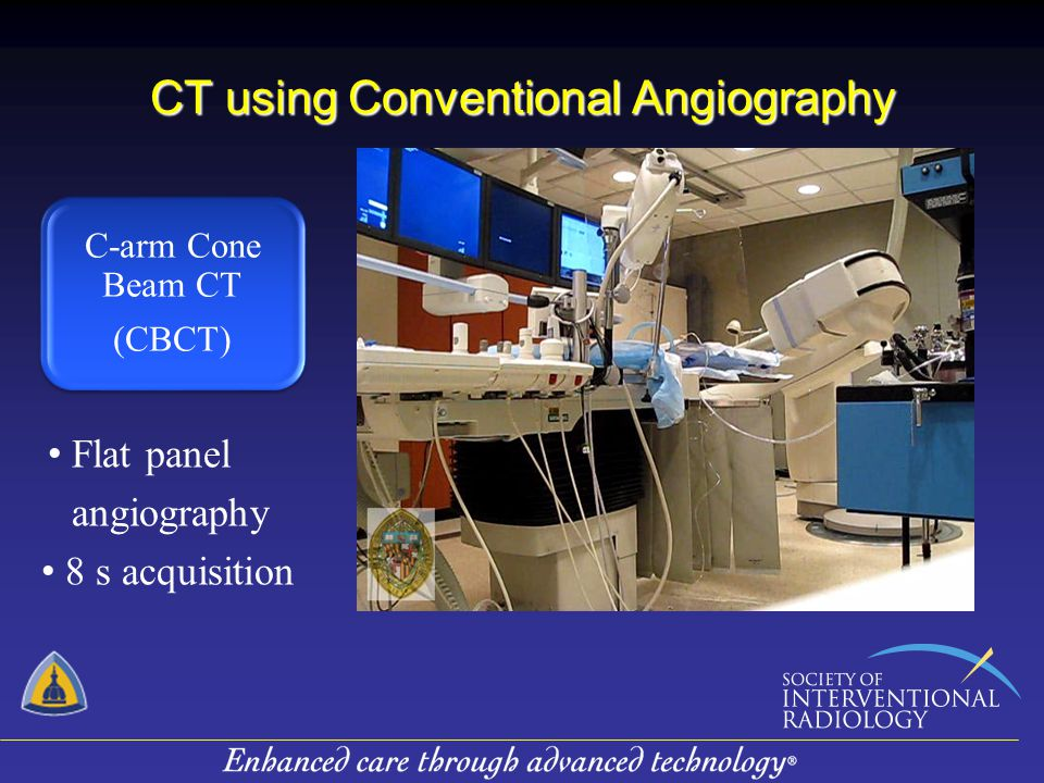 CT using Conventional Angiography C-arm Cone Beam CT (CBCT) C-arm Cone Beam CT (CBCT) Flat panel angiography 8 s acquisition