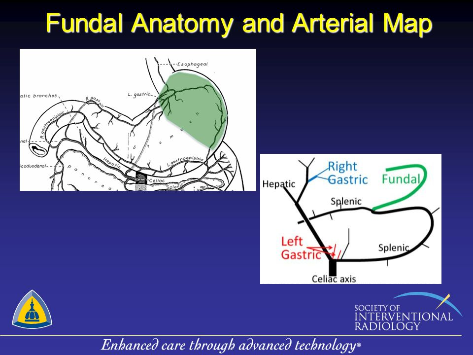 Fundal Anatomy and Arterial Map