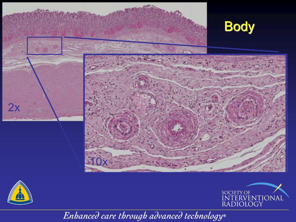Body 2x 10x