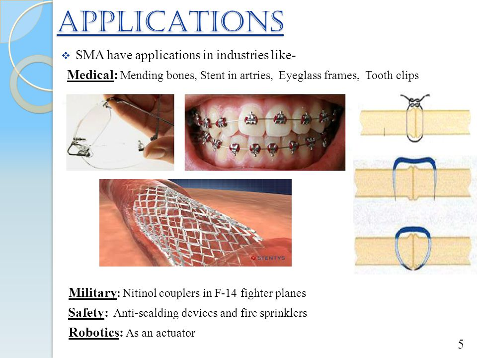 APPLICATIONS  SMA have applications in industries like- Medical: Mending bones, Stent in artries, Eyeglass frames, Tooth clips Safety: Anti-scalding devices and fire sprinklers Military : Nitinol couplers in F-14 fighter planes Robotics: As an actuator 5
