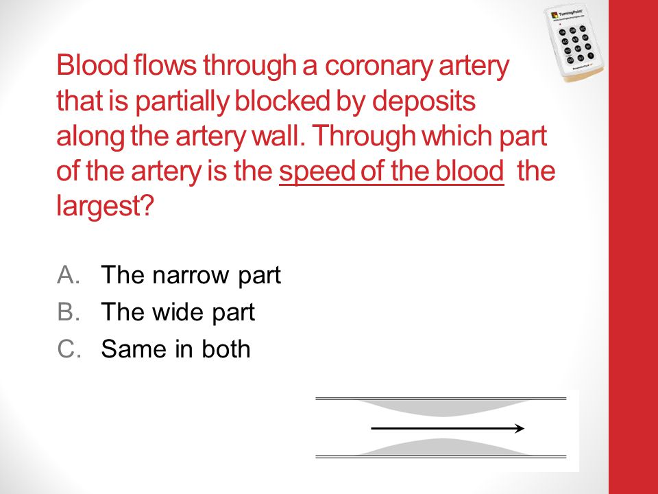 Blood flows through a coronary artery that is partially blocked by deposits along the artery wall. Through which part of the artery is the speed of th