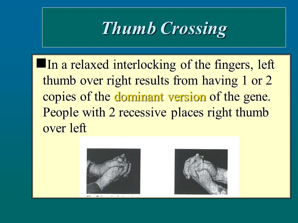 Mid Digit Hair People lacking hair in the middle segments of the finger have 2 recessive versions of the gene People lacking hair in the middle segments of the finger have 2 recessive versions of the gene