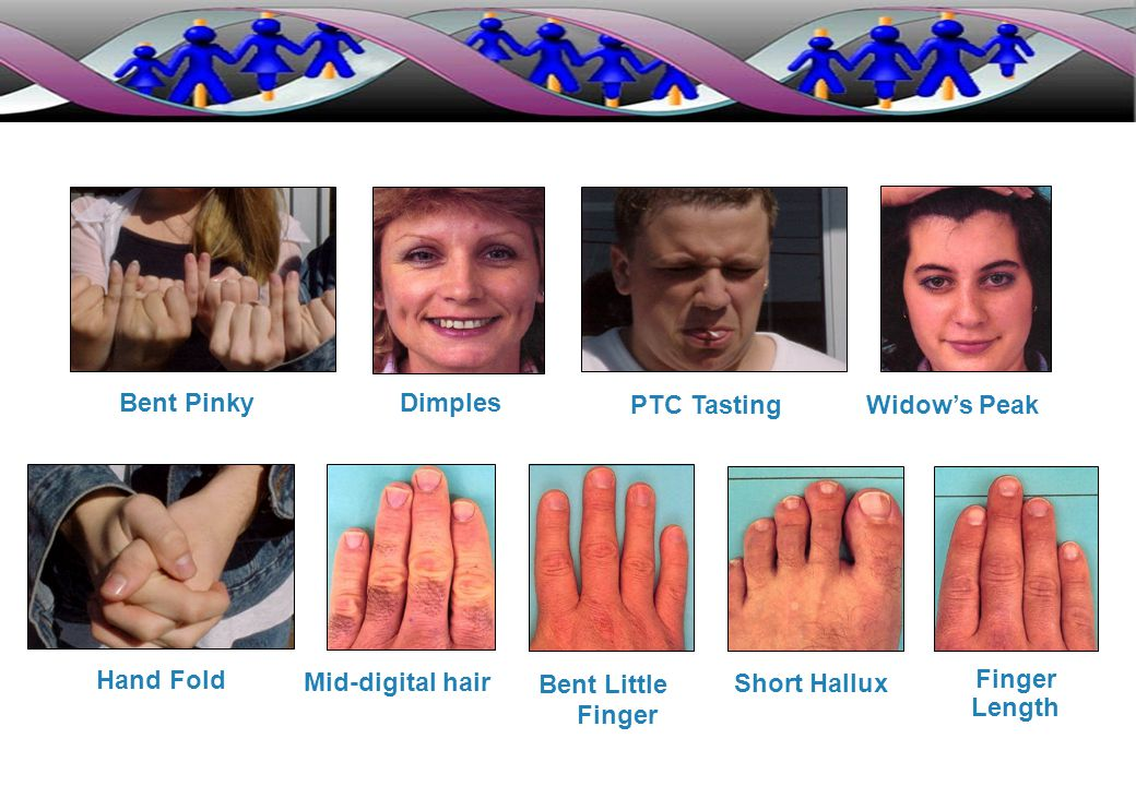 Hand Fold Bent Pinky PTC Tasting Widow's Peak Dimples Mid-digital hair Bent Little Finger Short Hallux Finger Length