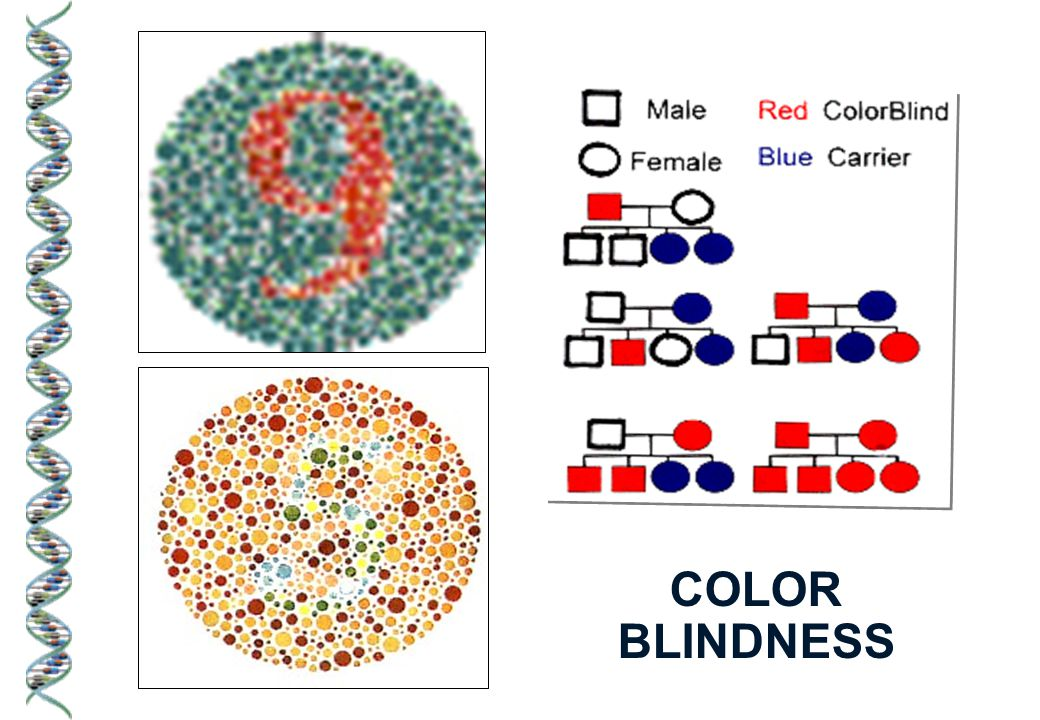 Examples of sex-linked recessive traits: COLOR BLINDNESS