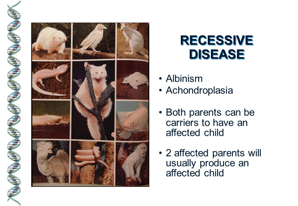 Dominant doesn't necessarily mean commonplace Albinism Achondroplasia Both parents can be carriers to have an affected child 2 affected parents will usually produce an affected child RECESSIVE DISEASE