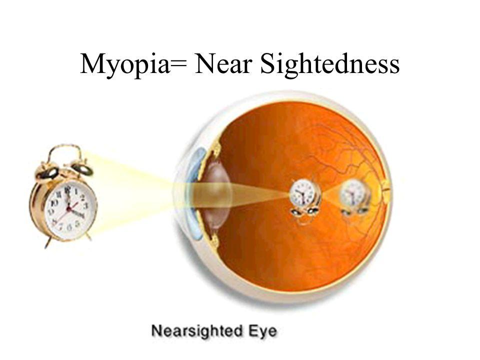 Myopia= Near Sightedness