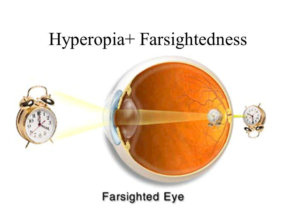 Hyperopia+ Farsightedness