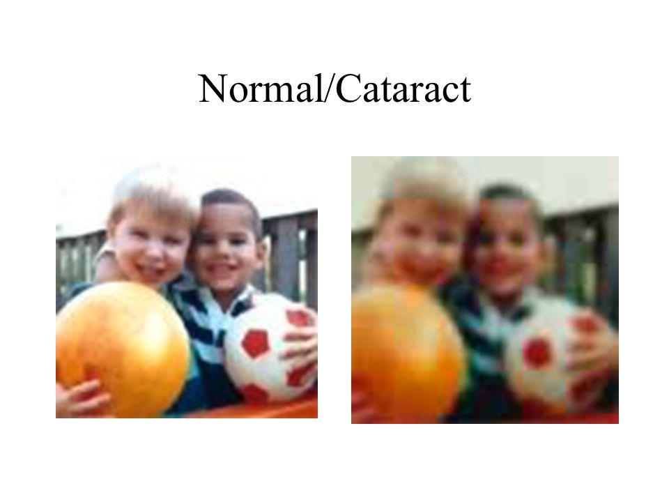 Normal/Cataract