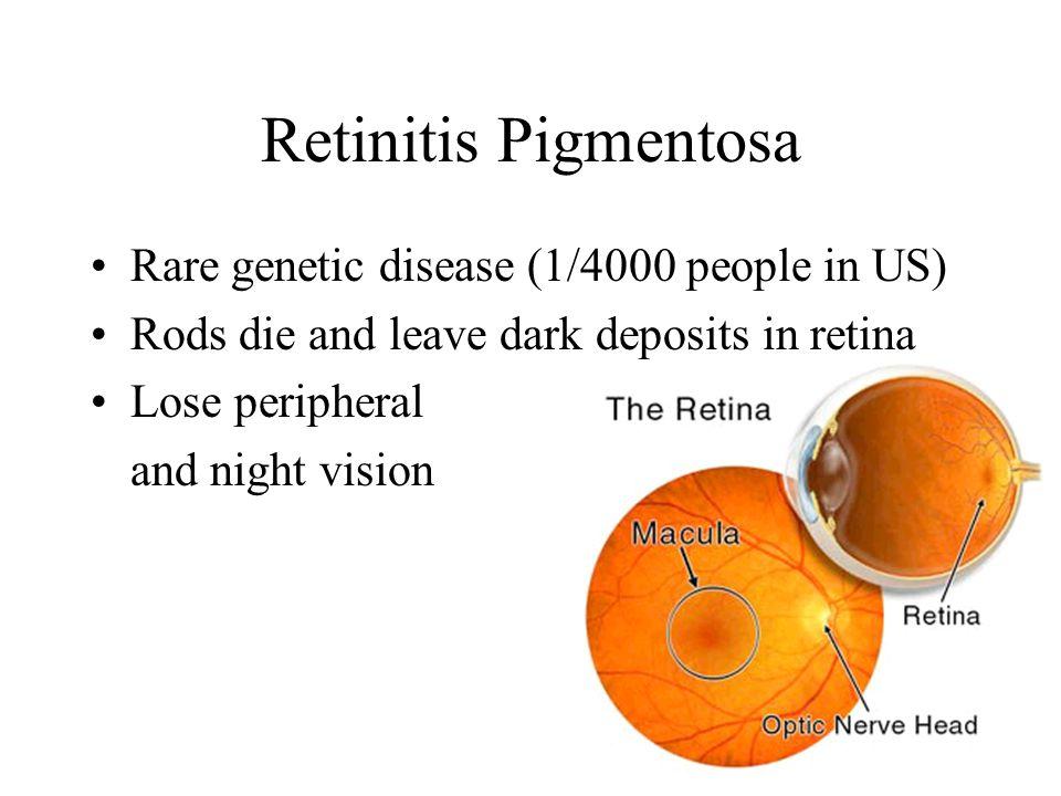 Retinitis Pigmentosa Rare genetic disease (1/4000 people in US) Rods die and leave dark deposits in retina Lose peripheral and night vision