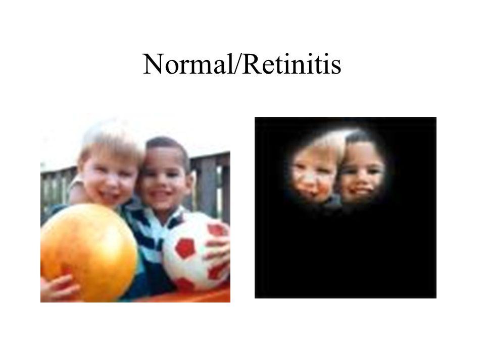 Normal/Retinitis