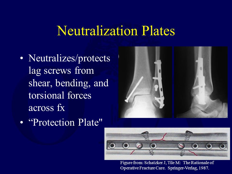 "Neutralization Plates Neutralizes/protects lag screws from shear, bending, and torsional forces across fx ""Protection Plate"