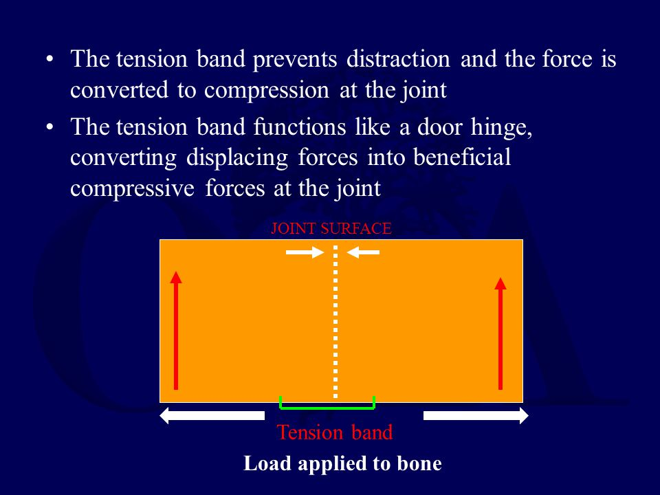 The tension band prevents distraction and the force is converted to compression at the joint The tension band functions like a door hinge, converting