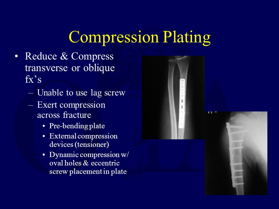 Compression Plating Reduce & Compress transverse or oblique fx's –Unable to use lag screw –Exert compression across fracture Pre-bending plate Externa