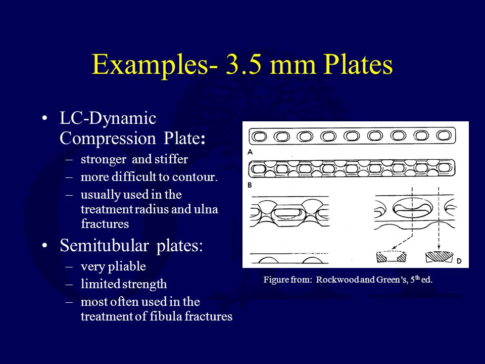 Examples- 3.5 mm Plates LC-Dynamic Compression Plate: –stronger and stiffer –more difficult to contour. –usually used in the treatment radius and ulna