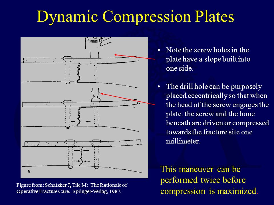 Dynamic Compression Plates Note the screw holes in the plate have a slope built into one side.
