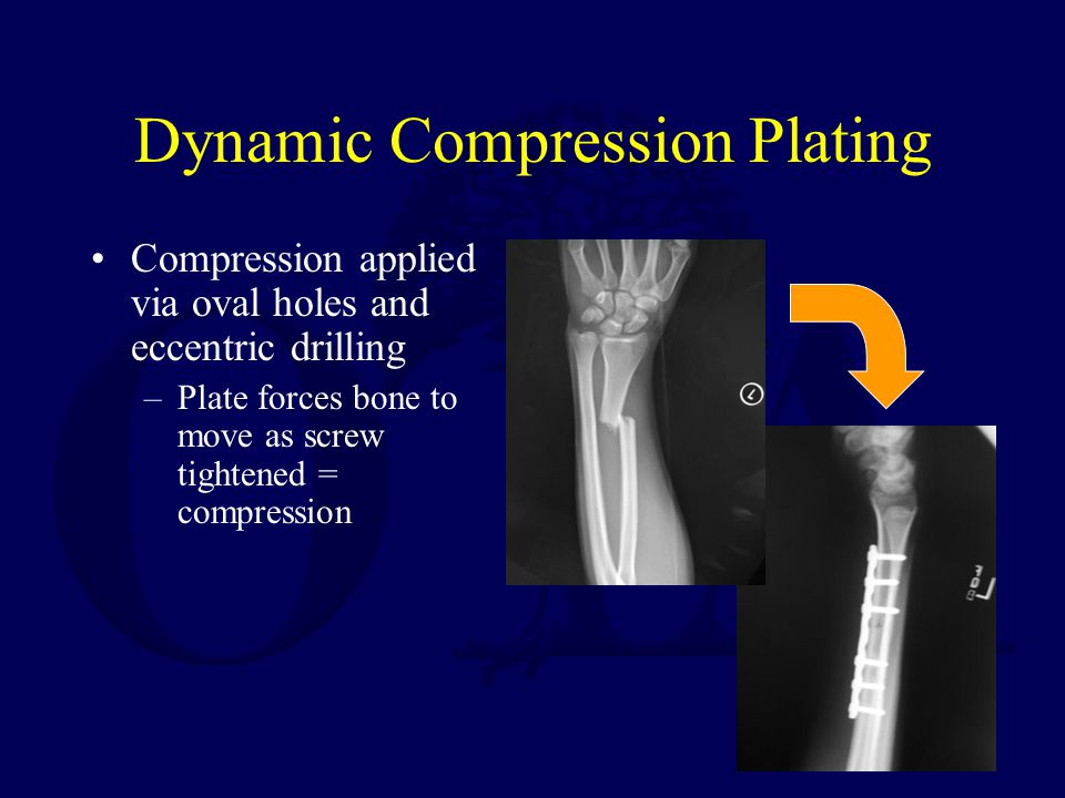 Dynamic Compression Plating Compression applied via oval holes and eccentric drilling –Plate forces bone to move as screw tightened = compression