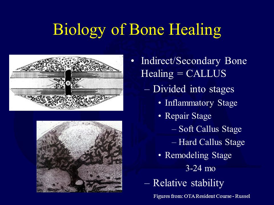Biology of Bone Healing Indirect/Secondary Bone Healing = CALLUS –Divided into stages Inflammatory Stage Repair Stage –Soft Callus Stage –Hard Callus