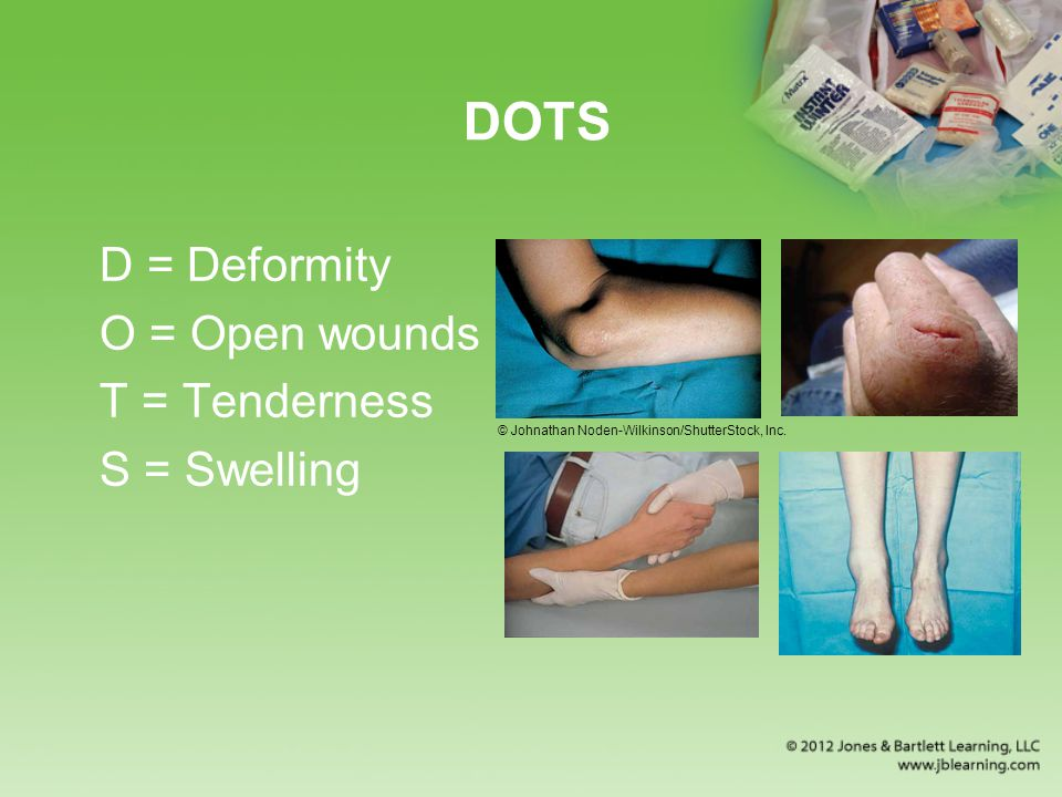 DOTS D = Deformity O = Open wounds T = Tenderness S = Swelling © Johnathan Noden-Wilkinson/ShutterStock, Inc.